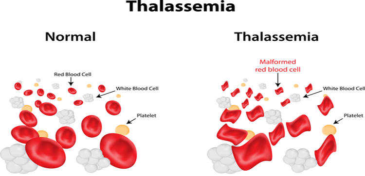 My life with Thalassemia minor