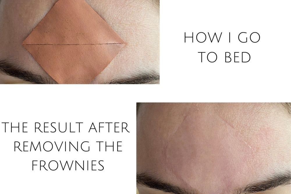 Frownies patch on forehead before and after